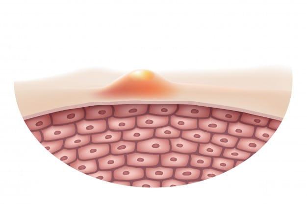 Huidverzorging Wijnegem Visia huidanalyse